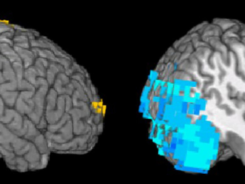 A person with primary progressive aphasia activates part of the right-hand side of their brain (shown in blue) to decipher a sentence, whereas the normal person (left-hand image) does not. (Image: Aneta Kielar/University of Arizona)