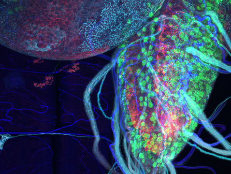 The researchers observed brain lobes of ALS-affected fruit flies under a microscope. Pictured is a nerve cord, populated with green-stained motor neurons, expressing human glucose transporters. Areas of neurotransmitter release are shown in red, while muscles are shown in blue. (Courtesy of the Zarnescu Lab).