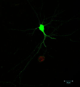 A single infected neuron. The ability to identify which neurons are infected, and which part of the neuron is infected, relies on the parasite-induced expression of green fluorescent protein in the neuron as well as the expression of a red fluorescent protein by the parasites themselves. (Photo: Anita Koshy)