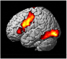 Brain activity in a healthy adult during a challenging spelling task shows regions of the brain involved in written language. (Image: Pélagie Beeson)
