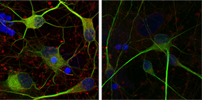 These human motor neurons have been immunostained to highlight the cell membrane and regions containing DNA and Hsc70/HSPA8 in green, blue and red, respectively. Right: Normal human motor neurons. Hsc70/HSPA8 also lines the membranes of these cells, tinting them yellow as the red immunostain is layered with green. Left: Human motor neuron derived from ALS patient. (Image: Rita Sattler/Barrow Neurological Institute)