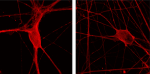These patient-derived motor neurons have been immunostained to show Hsc70/HSPA8 in the cells. The image on the right shows a neuron with normal TDP-43, and the image on the left shows a neuron producing mutant TDP-43, which causes a reduction in the Hsc70/HSPA8 present in the cell. (Image: Rita Sattler/Barrow Neurological Institute)