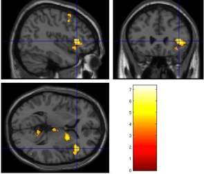 Functional magnetic resonance imaging, or fMRI, data showing areas of the brain activated during grief. (Image: O'Connor lab)