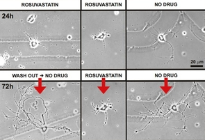 "Statins, the popular cholesterol-lowering class of drugs, have a number of known side effects, including the potential for muscle pain, liver damage, digestive problems and, most recently discovered, memory loss. UA researchers have made a novel observation, and the team has termed it the ""beads-on-a-string"" effect, which may be an indication of what is causing memory loss in patients using statins. (Photo courtesy of Linda L. Restifo)"
