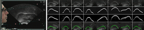 The top row in the image to the right indicates ultrasound inputs. The second row represents tongue contours drawn by a human. The third row represents the automatic system's raw output, with the bottom row showing the contour after they had been processed. (Image courtesy of: Diana Archangeli and Ian Fasel)