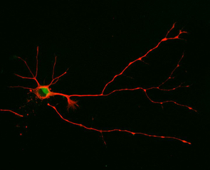 In this study, UA researchers discovered that a neuron will form multiple axons as seen here when they blocked the short version of a signaling molecule from functioning. (Photo: Sara Parker)