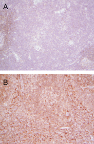 Using a technique that makes the presence of Protein S visible under the microscope, samples taken from lymph nodes with resting T-cells reveal no sign of the protein (A), while dark staining indicates the presence of Protein S in activated T-cells (B). (Photo: Anthony Perry)