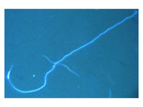 Scanning electron micrograph of a C. elegans sperm. The knobby part at the right is the pseudopod, which is used for crawling. (Photo: Craig LaMunyon)