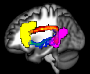 Using magnetic resonance imaging of the brain, researchers can visualize the two main language processing regions, Broca's region (yellow) and Wernicke's region (purple). (Image: Stephen Wilson)