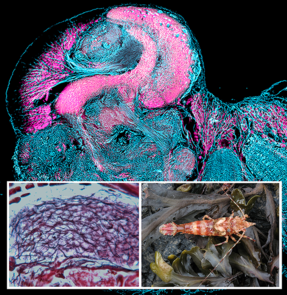 Antibody labeling reveals the columnar lobe of a mushroom body in the brain of a broken-back shrimp (lower right). Closer examination reveals neurons organized in intricate networks (lower left). (Image: Nicholas Strausfeld, Gabriella Wolff and Marcel Sayre)