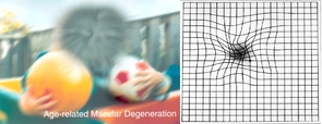 A scene as viewed by a person with the form of age-related macular degeneration known as dry AMD (left). To someone with wet AMD, straight lines appear wavy, as shown by the Amsler grid on the right. (Images: National Eye Institute, National Institutes of Health)