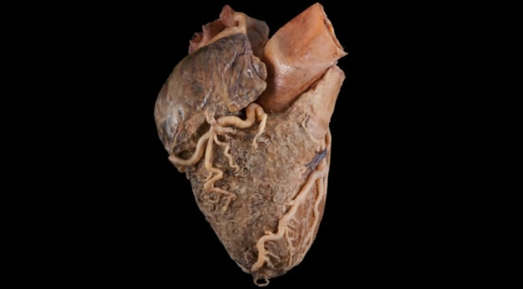 New App Lets Med Students Study Real Human Heart On Ipad Uanews