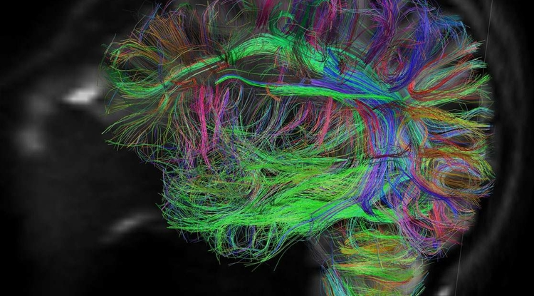 A diffusion spectrum image shows brain wiring in a healthy human adult. The threadlike structures are nerve bundles, each containing hundreds of thousands of nerve fibers. (Image: NIH)