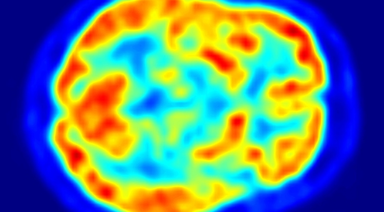 UA researchers studied brain images of 124 cognitively normal, non-diabetic adults with a family history of Alzheimer's disease.