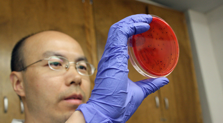 Libin Zhu, Sadhana Ravishankar's lab manager, tested the survivability of Salmonella on copper alloys with varying copper concentrations. The bacteria cells sometimes died out on copper surfaces within hours, while they survived for up to two weeks on stainless steel.