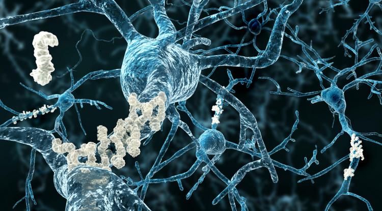 Alzheimer's disease plaques (Image courtesy of ProNeurogen)