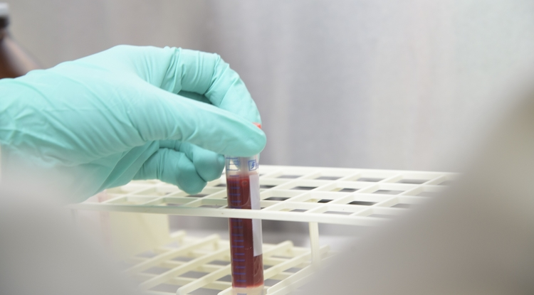 The antibody blood test can detect whether people have been exposed to and mounted an immune response to COVID-19. (Photo: Kris Hanning/University of Arizona Health Sciences)