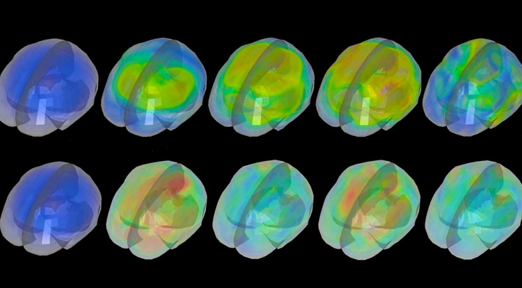 Selected brain scans from a new research paper on the causes of traumatic brain injury by Kaveh Laksari of the UA Department of Biomedical Engineering