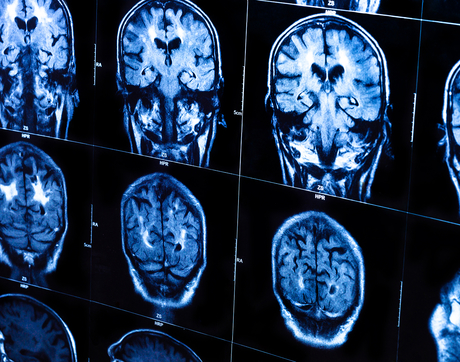 Ying-hui Chou will couple the power of MRI technology with transcranial magnetic stimulation to improve memory function in patients with mild cognitive impairment.