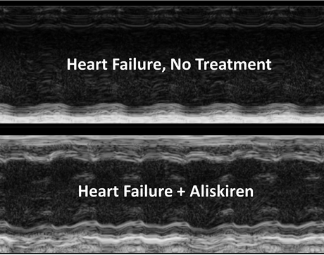 The treated image shows improved contractility of the heart, less ventricle/chamber dilation and improvement in wall thickness compared to the untreated heart.