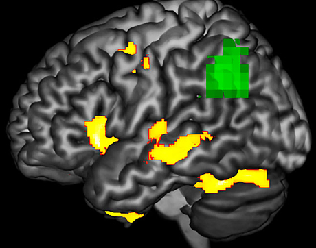 This image highlights areas in a brain with PPA during a language task where researchers observed functional abnormality (green) and structural degenerating (yellow). The green areas may be at-risk or dysfunctional, even if the neurons are not yet dead. (Image courtesy of Aneta Kielar)