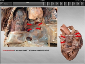 Included in the app is a series of images designed to teach students about blood flow though the heart.
