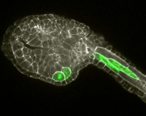 Ciona allows scientists to study in detail how cells interact to build complex organs. In this microscopic image, two of the cells that will form the heart were stained with a green fluorescent marker and can be seen in the lower portion of the tadpole-like Ciona embryo. (Photo: Katerina Ragkousi)