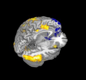 The fMRI image above depicts areas of the brain associated with the competing motivations of minimizing guilt (yellow) and maximizing financial reward (blue) when participants decide whether or not they want to honor an investment partner's trust. The motivation to minimize guilt is associated with the insula, anterior cingulate cortex and supplementary motor area (yellow). The motivation to maximize financial reward is associated with the ventral striatum, ventromedial prefrontal cortex and dorsomedial prefrontal cortex. (Image courtesy Luke Chang/UA psychology department)