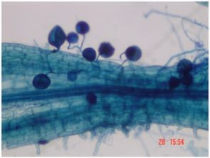 This microscopic image reveals an example of a mycorrhiza in a mesquite tree. Mycorrhiza is a mutually beneficial association between plant roots and a fungus, seen here as ball, and thread-like structures in which each partner makes nutrients available that the other can't produce on its own. (Photo credit: F. Solis-Dominguez)
