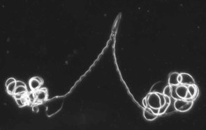 (Click image to enlarge) These are paired sperm of the diving beetle, Thermonectus marmoratus. The darkfield microscopy image shows both heads and tails of the paired sperm, which is a quarter millimeter long. Photo: D. Higginson