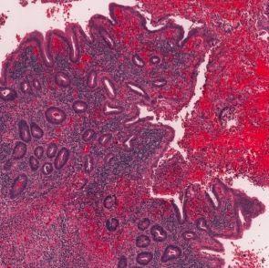 Pituitary Gland.dmi, 2007 (Photo credit: Robert Hershoff)