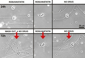 """Statins, the popular cholesterol-lowering class of drugs, have a number of known side effects, including the potential for muscle pain, liver damage, digestive problems and, most recently discovered, memory loss. UA researchers have made a novel observation, and the team has termed it the """"beads-on-a-string"""" effect, which may be an indication of what is causing memory loss in patients using statins. (Photo courtesy of Linda L. Restifo)"""