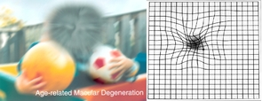 The photo on the left shows a scene as viewed by a person with the form of age-related macular degeneration known as dry AMD. To someone with wet AMD, straight lines appear wavy, as shown by the Amsler grid on the right. (Images: National Eye Institute, National Institutes of Health)