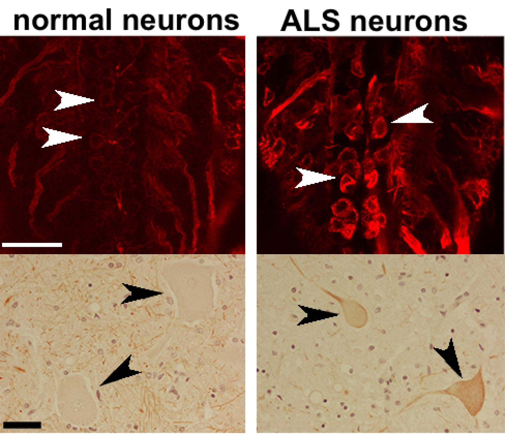 In these microscope images of fruit fly  and human  neurons, darts point to Futsch/MAP1B protein localization in motor neuron cell bodies. Compared to healthy neurons , the ALS neurons clearly show accumulations of the proteins.