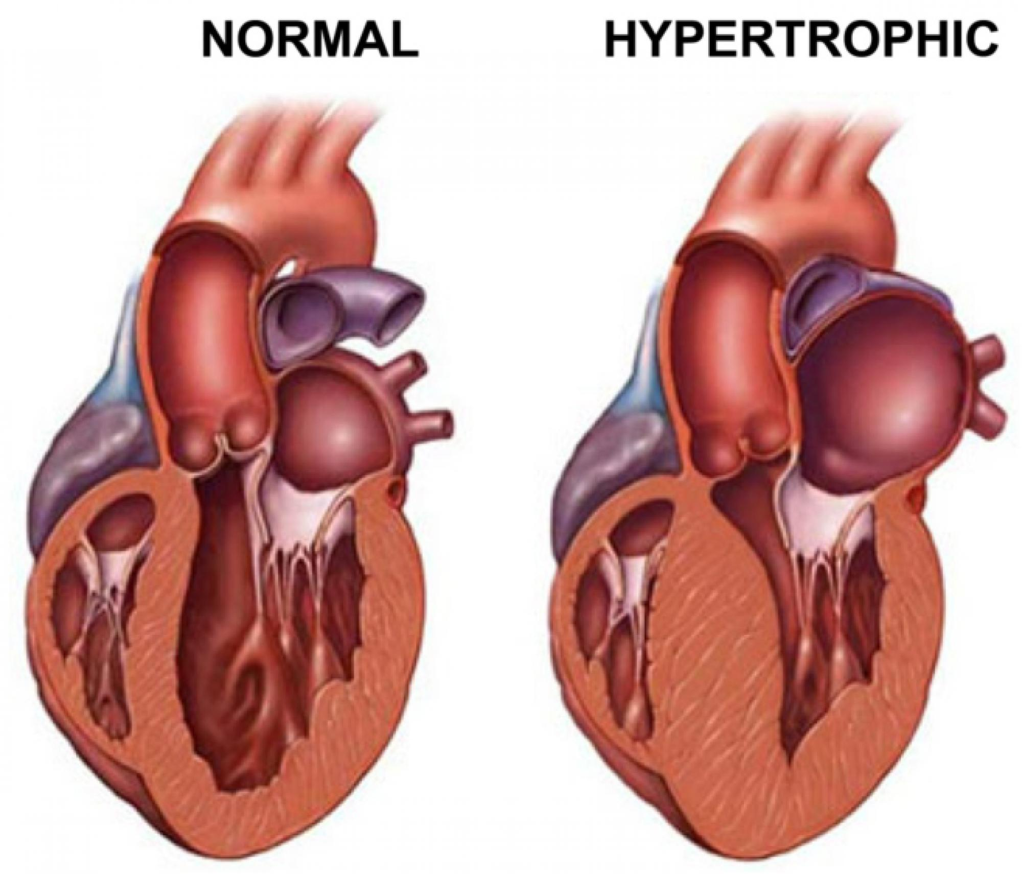 """In a hypertrophic heart, the heart muscle can become enlarged and decrease the volume of blood that the heart can pump. """"The real problem is the chamber of the heart gets very small because the wall takes up too much space,"""" explained Tardiff."""