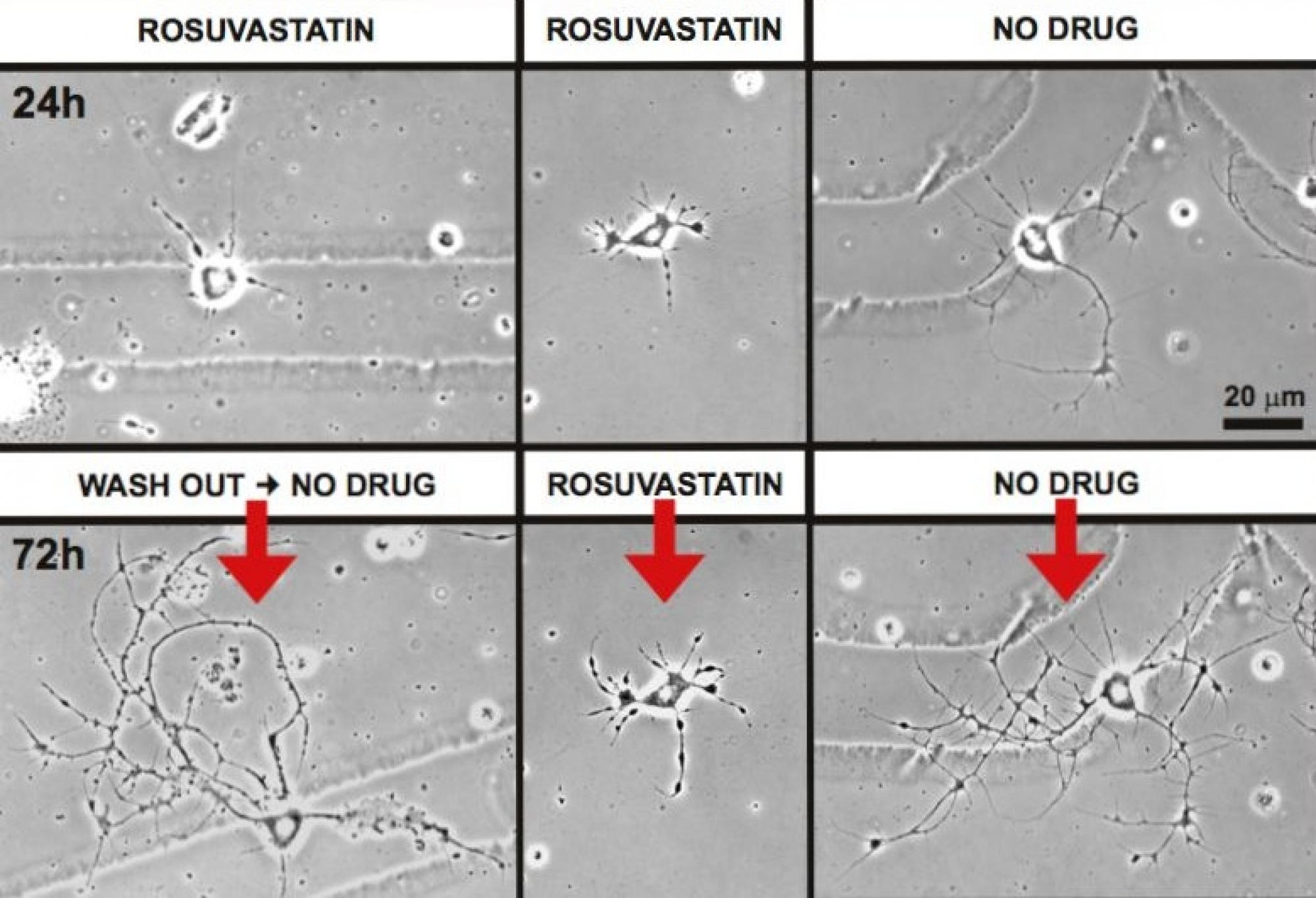 Statins, the popular cholesterol-lowering class of drugs, have a number of known side effects, including the potential for muscle pain, liver damage, digestive problems and, most recently discovered, memory loss. UA researchers have made a novel observati