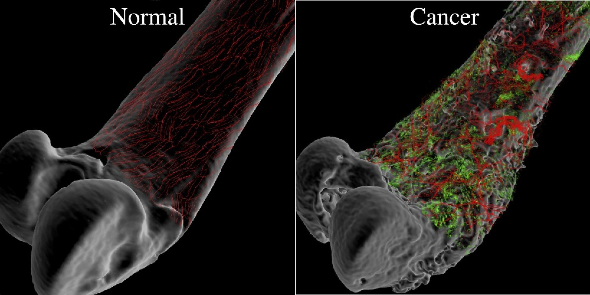 Normal bone and sensory nerve fibers and cancerous bone and sensory nerve fibers.