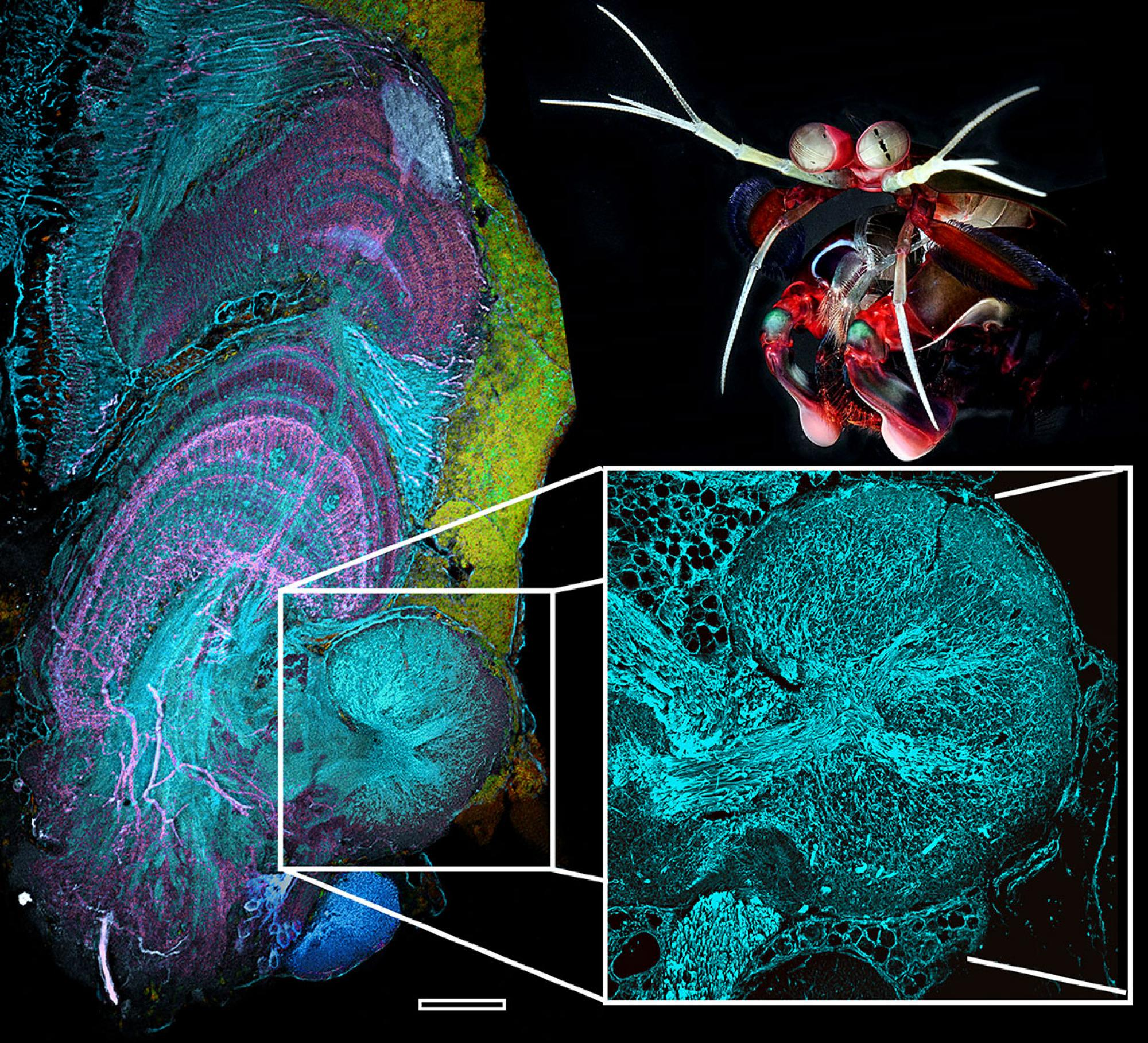 Researchers stained mantis shrimp brain specimens with antibodies to obtain highly detailed images showing various types of neuronal processes. The reniform body  is connected to the eye's visual  and learning and memory center .