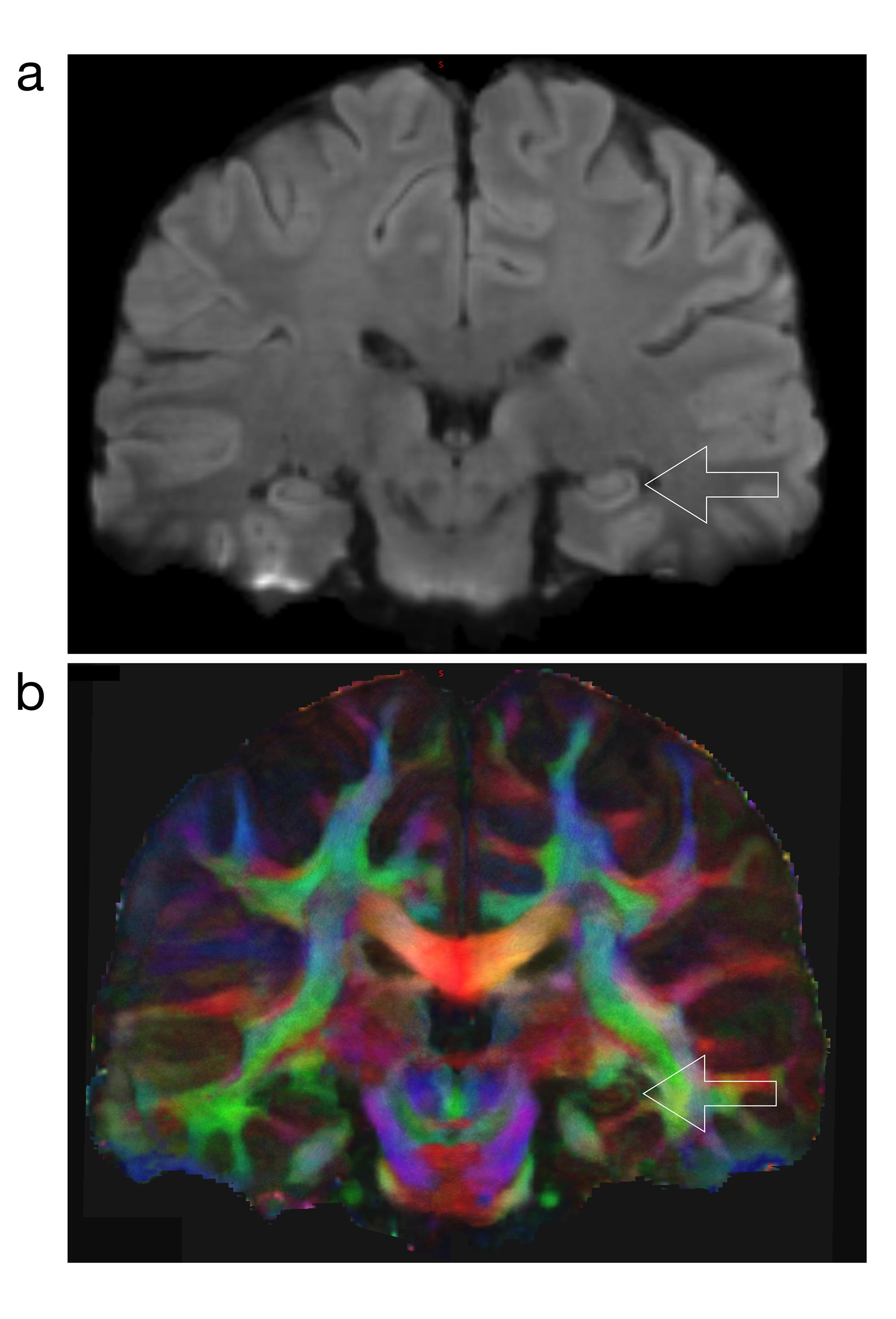These high-resolution diffusion-weighted magnetic resonance images show thestructural connection to the hippocampus, which is the most important brain region involved in memory. The lower image  is color-coded, with red indicating left-rightstructural c
