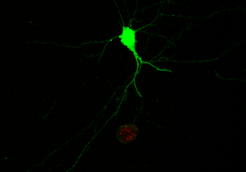 A single infected neuron. The ability to identify which neurons are infected, and which part of the neuron is infected, relies on the parasite-induced expression of green fluorescent protein in the neuron as well as the expression of a red fluorescent pro