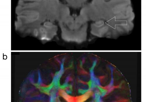 These high-resolution diffusion-weighted magnetic resonance images show the structural connection to the hippocampus, which is the most important brain region involved in memory. The lower image  is color-coded, with red indicating left-right structural c