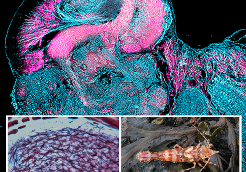 Antibody labeling reveals the columnar lobe of a mushroom body in the brain of a broken-back shrimp . Closer examination reveals neurons organized in intricate networks .