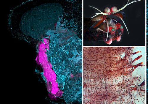 Part of the lateral forebrain of a mantis shrimp , a top predator of the coral reef. The lower right panel shows parallel nerve fibers of the lobe intersected by input and output neurons.