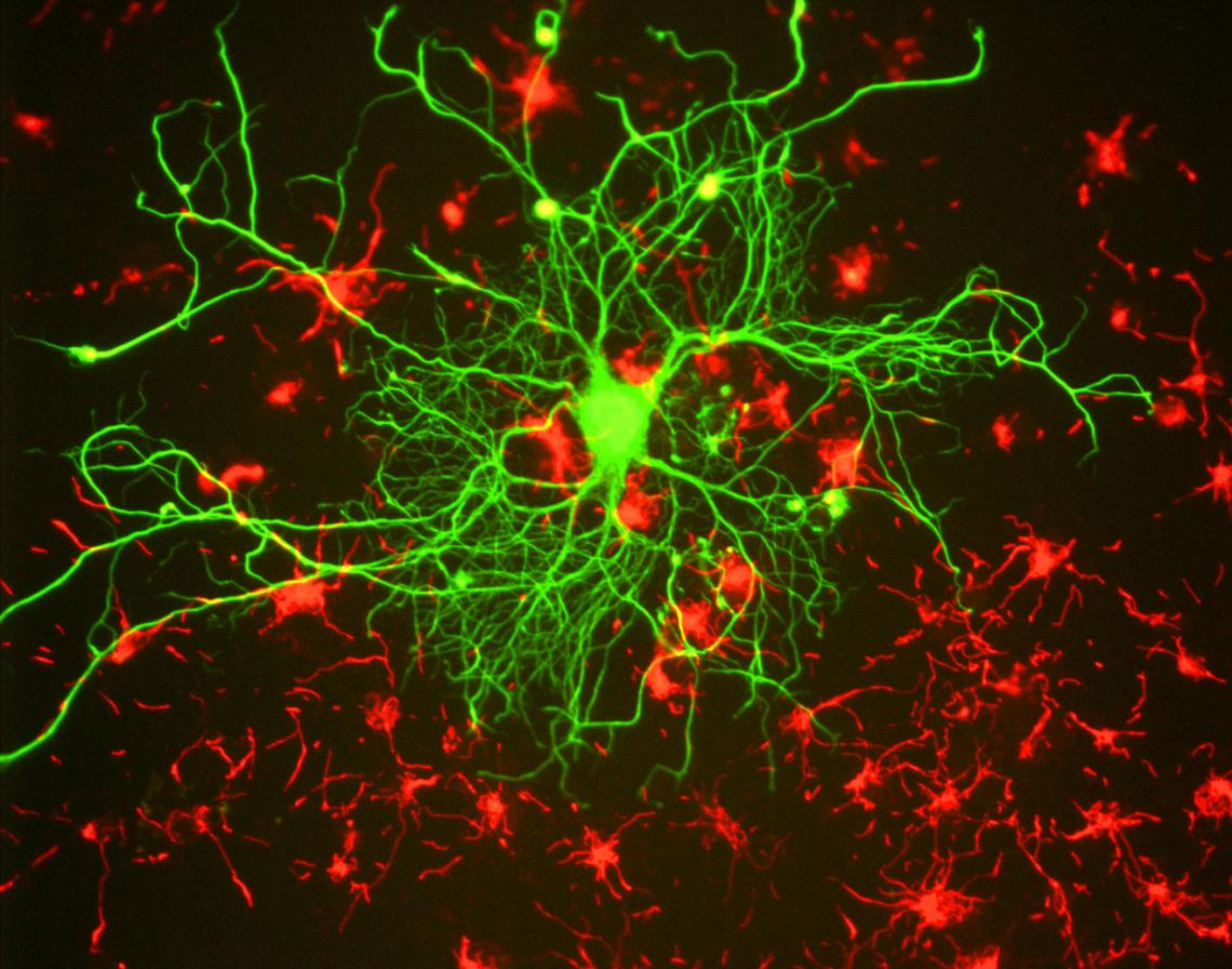 This image of a neuron in tissue culture reveals an extensive network of filaments.