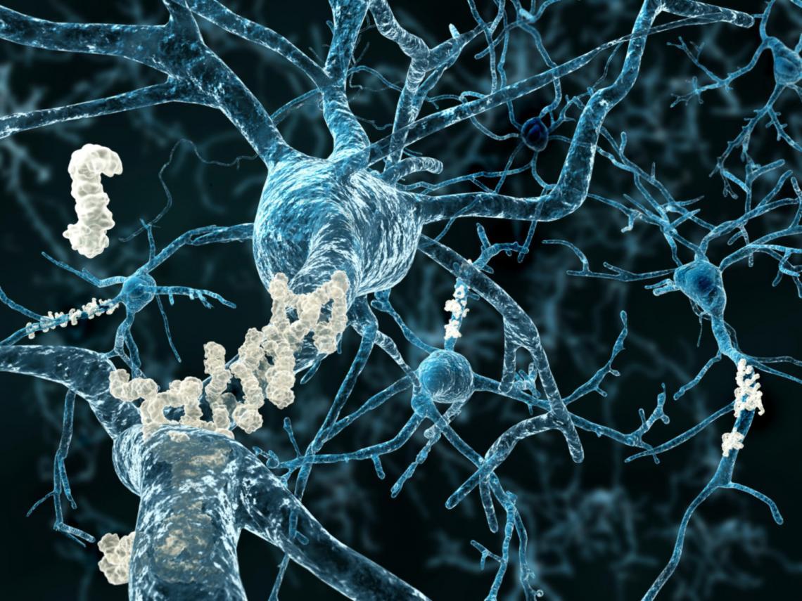 Alzheimer's disease plaques
