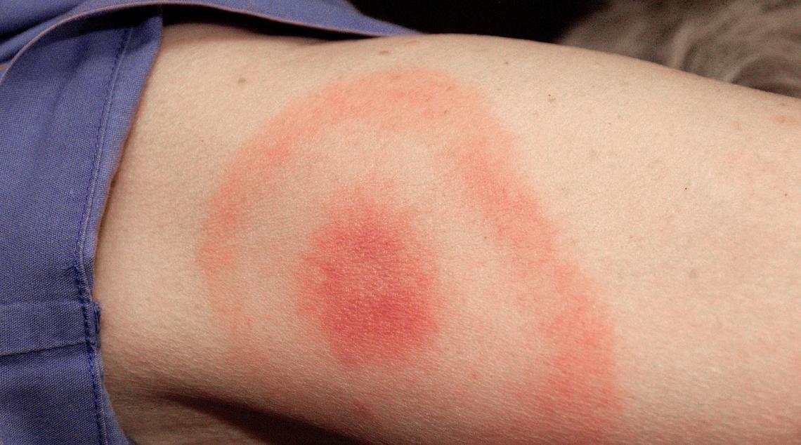 The typical bull's-eye rash often seen in Lyme disease is caused by the dynamics of the fight that ensues between the body's immune cells and the bacteria.