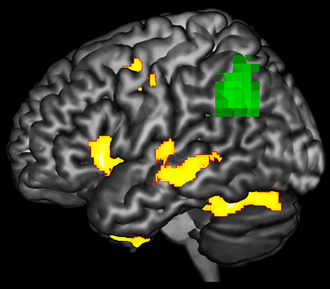 This image highlights areas in a brain with PPA during a language task where researchers observed functional abnormality  and structural degenerating . The green areas may be at-risk or dysfunctional, even if the neurons are not yet dead.