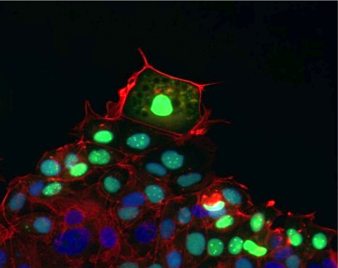 Leader cells, shown fluorescing green in this photomicrograph, pull follower cells in their wake as they move to cover and heal a wound.